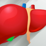 Fatty liver- Causes & symptoms